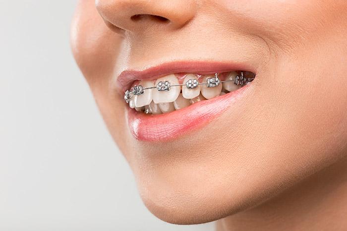 Ortodontia - Reslumbre Sorrir Faz Bem